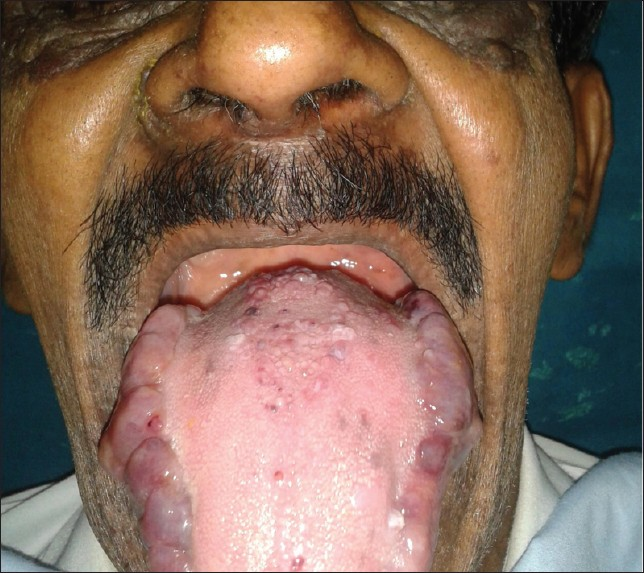 Macroglossia and Hypotonia in Down Syndrome.pptx on emaze